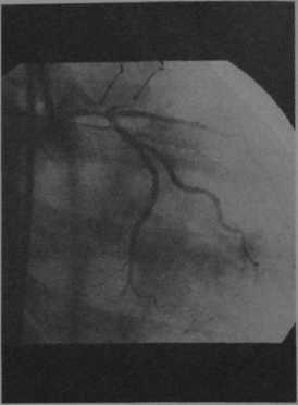Снимки МРТ и КТ. Расслоение коронарных сосудов