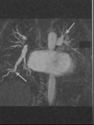 Снимки МРТ и КТ. Синдром Эйзенменгера