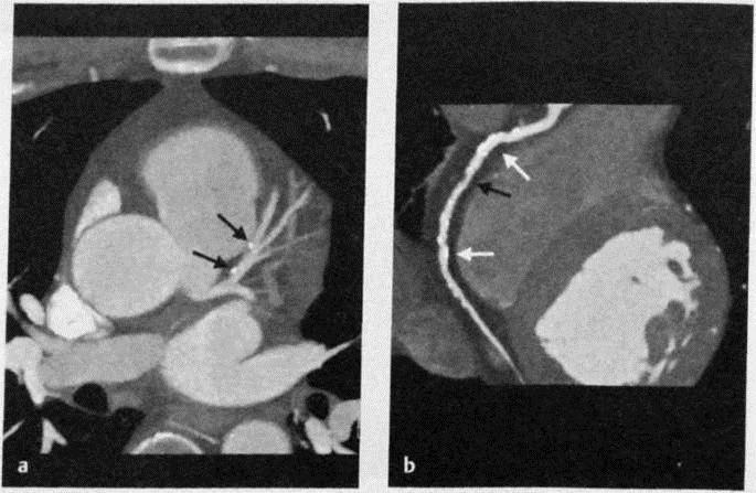 Снимки МРТ и КТ. Ишемическая болезнь сердца