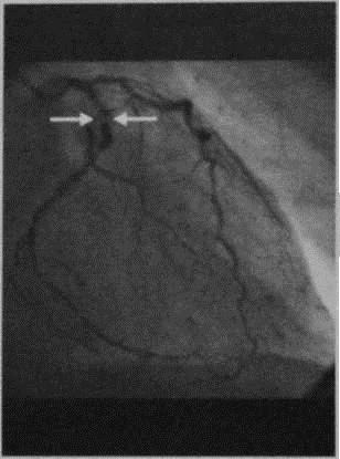 Снимки МРТ и КТ. Нестабильная стенокардия