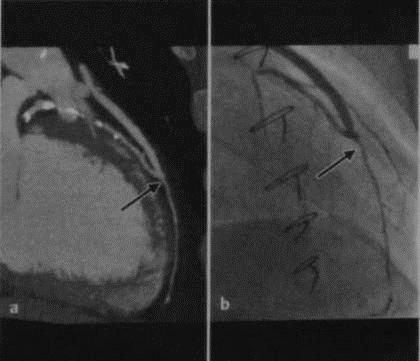 Снимки МРТ и КТ. Аортокоронарное шунтирование