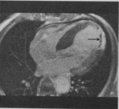 Снимки МРТ и КТ. Инфаркт миокарда