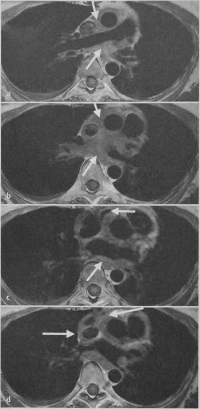 Снимки МРТ и КТ. Саркома легочной артерии