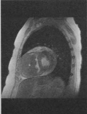 Снимки МРТ и КТ. Недифференцированная саркома