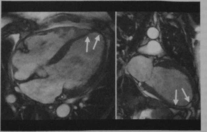 Снимки МРТ и КТ. Хроническая сердечная недостаточность