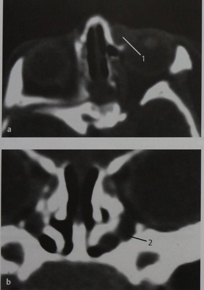 Снимки МРТ и КТ. Мукоцеле носослезного протока