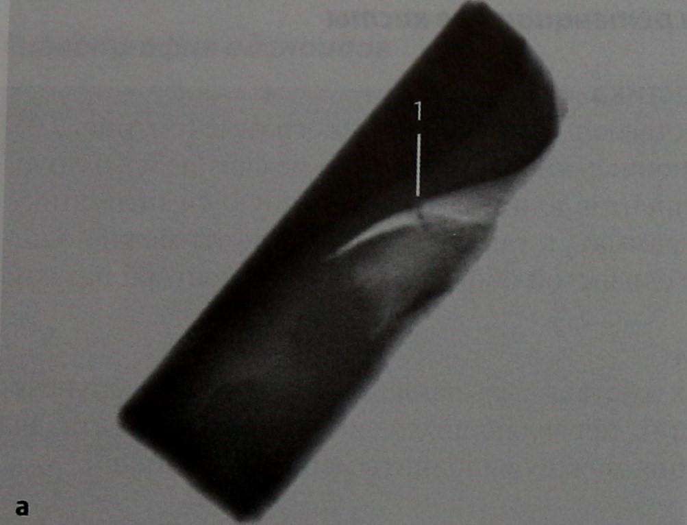 Снимки МРТ и КТ. Перелом носовых костей и ретенционные кисты
