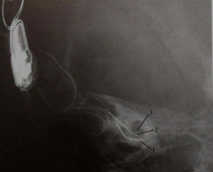 Снимки МРТ и КТ. Кохлеарная имплантация