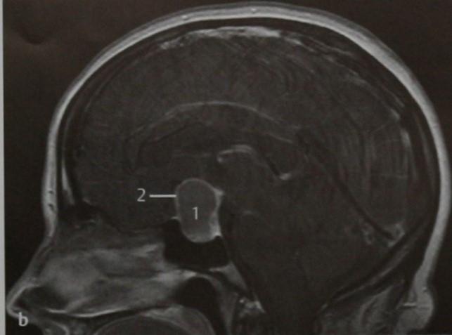 Снимки МРТ и КТ. Патологии гипофиза