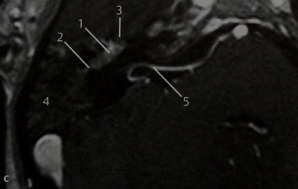 Снимки МРТ и КТ. Шваннома лицевого нерва
