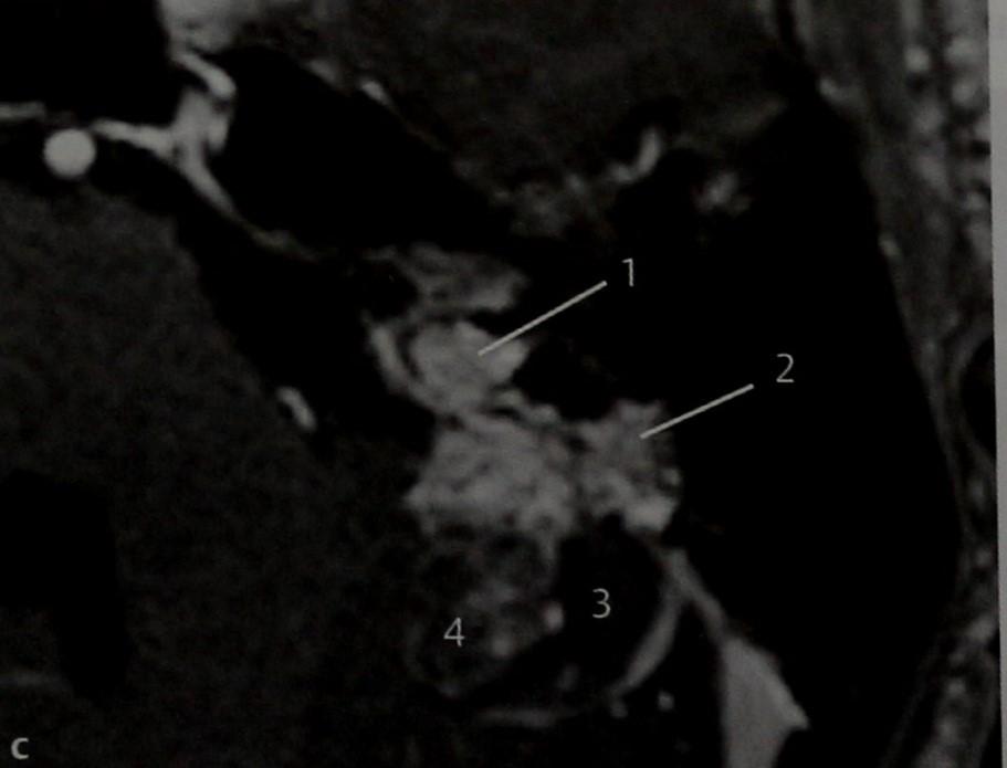 Снимки МРТ и КТ. Опухоль эндолимфатического мешка