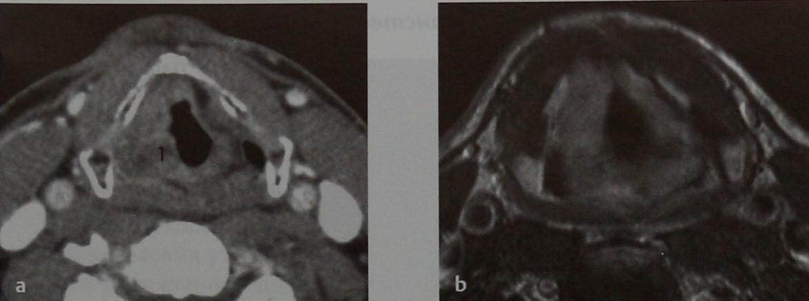 Снимки МРТ и КТ. Опухоли надскладочного пространства и глотки