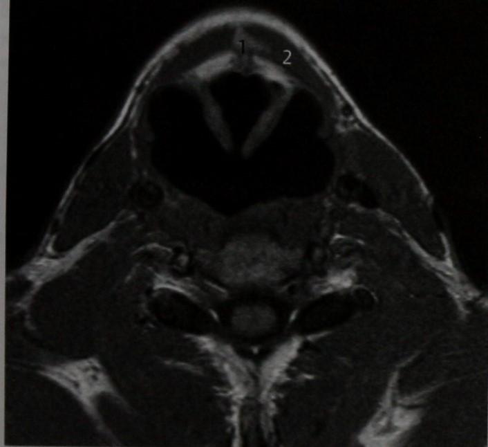 Снимки МРТ и КТ. Киста щитоязычного протока