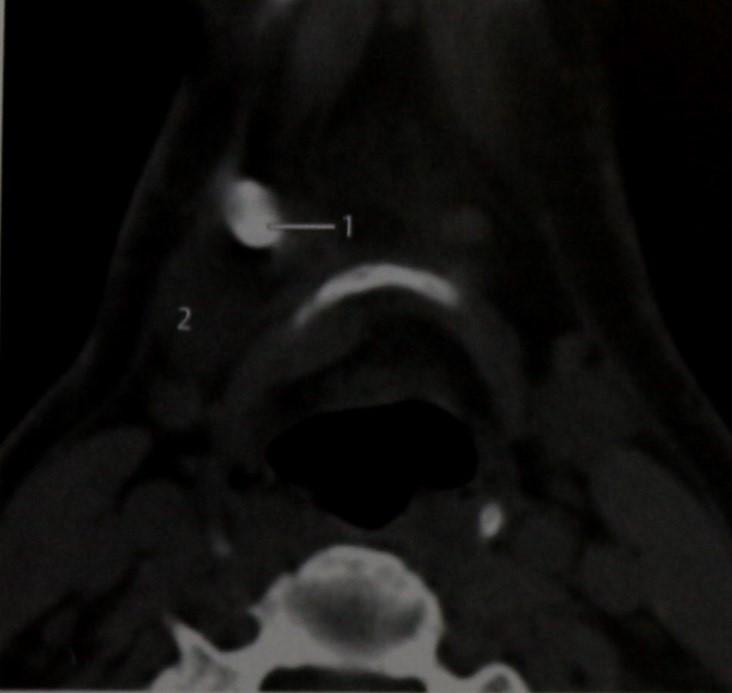 Снимки МРТ и КТ. Сиалолиты поднижнечелюстных желез