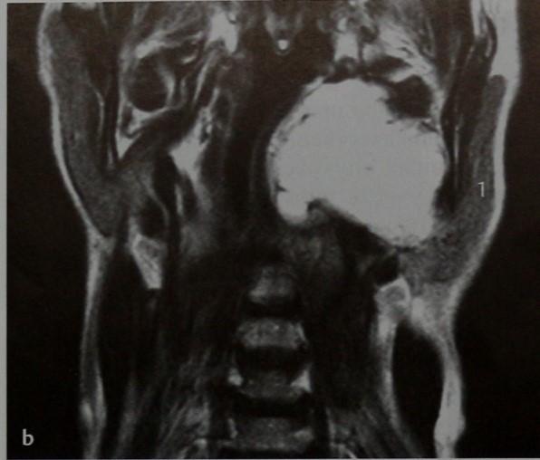 Снимки МРТ и КТ. Плеоморфная аденома околоушной железы