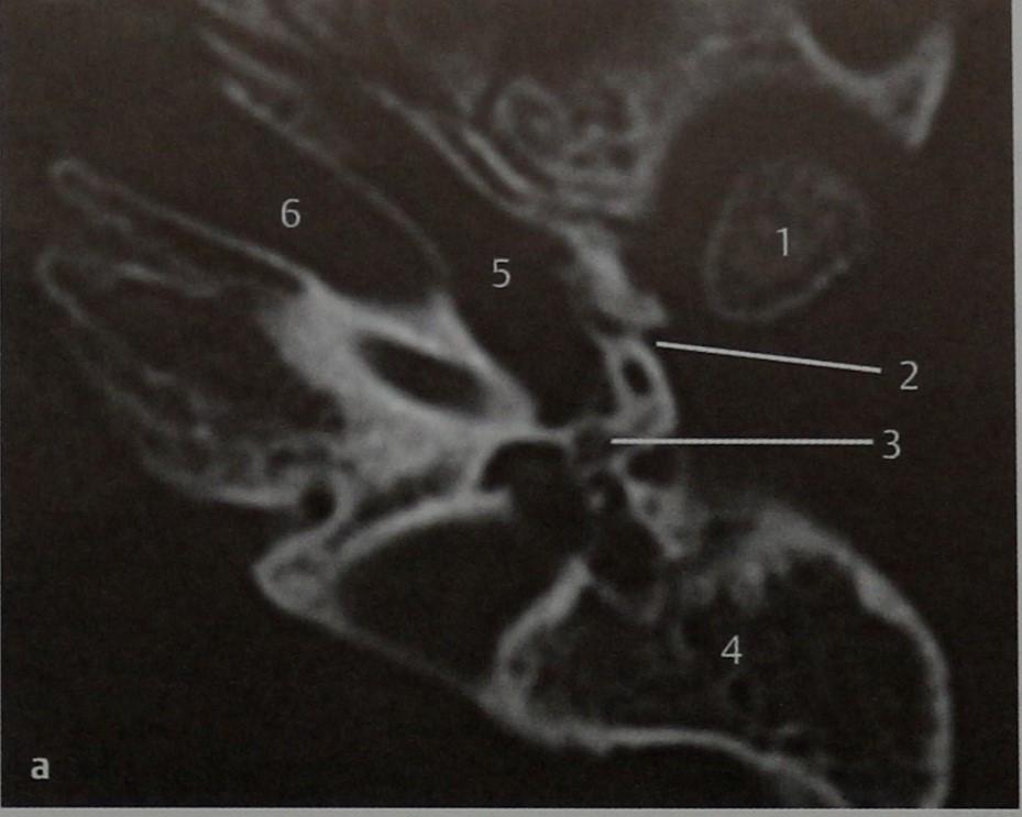 Снимки МРТ и КТ. Мальформации, синдром Тричера Коллинза