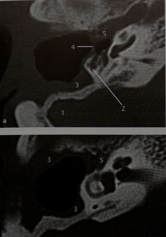 Снимки МРТ и КТ. Персистирование инфекции