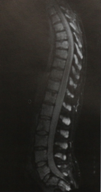 Снимки МРТ и КТ. Множественная миелома