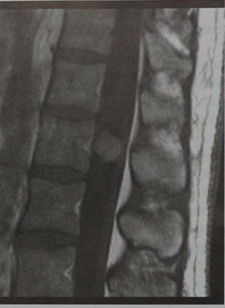 Снимки МРТ и КТ. Менингиома