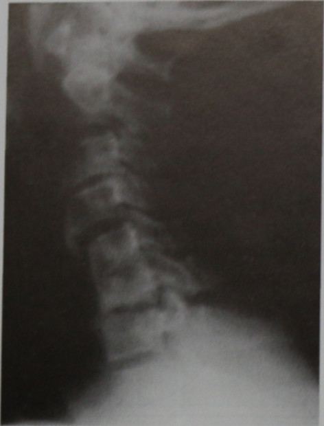 Снимки МРТ и КТ. Пороки развития позвонков