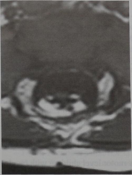 Снимки МРТ и КТ. Фиксация спинного мозга