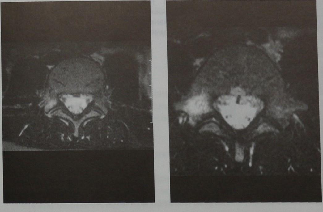 Снимки МРТ и КТ. Повреждение позвоночника вследствие перегрузки