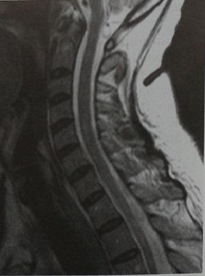 Снимки МРТ и КТ. Гранулематозное воспаление спинного мозга