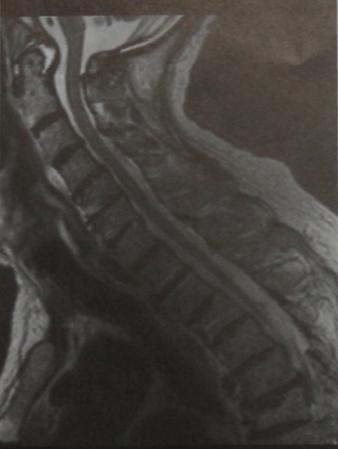 Снимки МРТ и КТ. Ревматоидный артрит хроническая травма