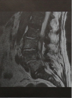 Снимки МРТ и КТ. Эпидуральный абсцесс