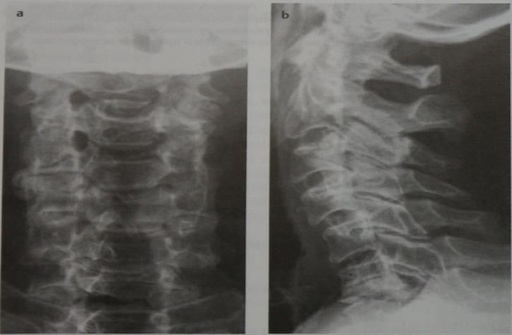 Снимки МРТ и КТ. Дегенеративные изменения дугоотростчатых суставов