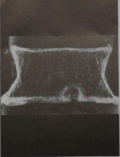 Снимки МРТ и КТ. Дегенерация межпозвоночных дисков