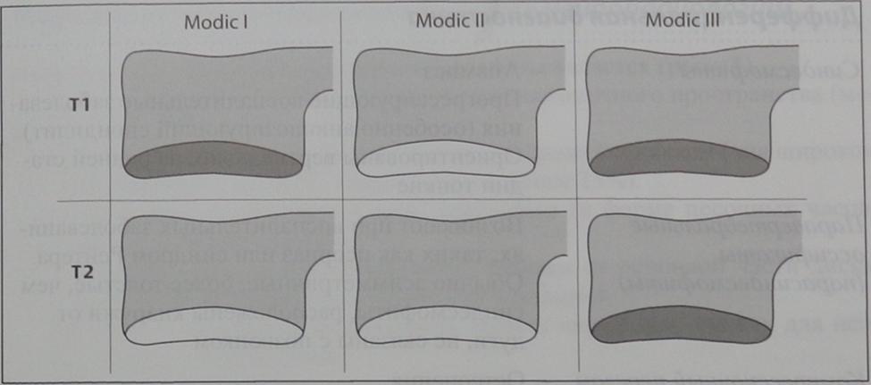 Снимки МРТ и КТ. Спондилез позвоночника