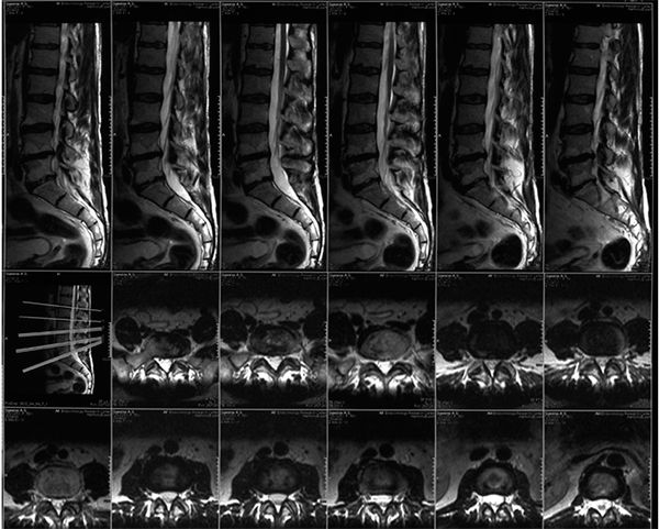 МРТ снимок позвоночника