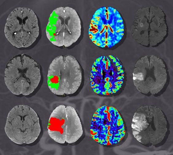 КТ ангиография мозга и шеи