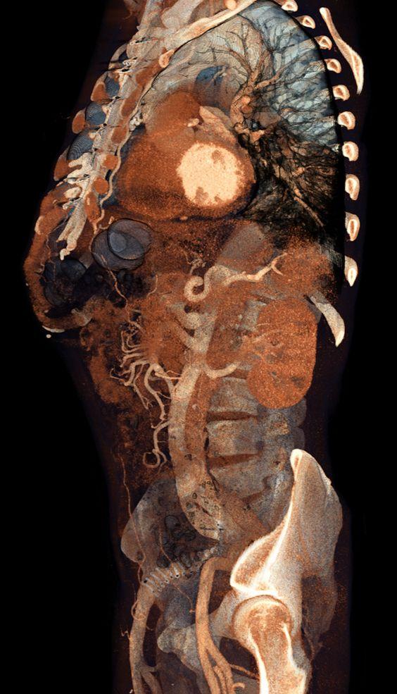 КТ брюшной полости и забрюшинного пространства
