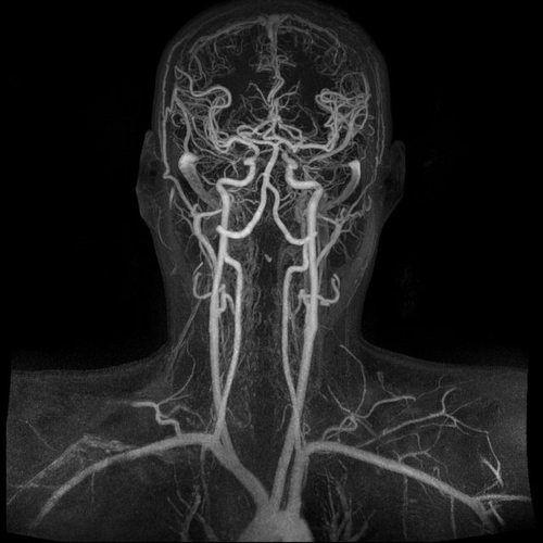 КТ сосудов головного мозга