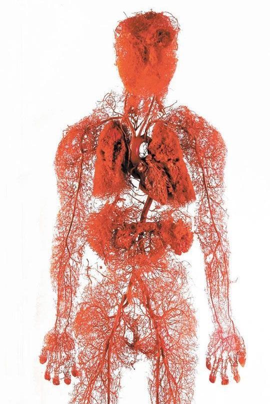 МРТ сосудов тела