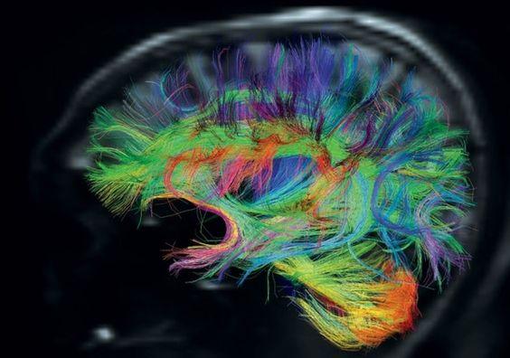 Диффузионная тензорная МРТ при ДЦП